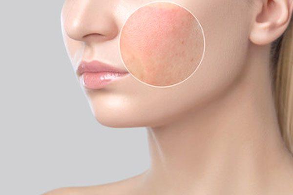 derma-skin-rashes